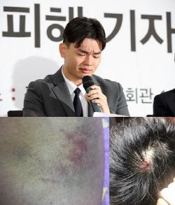 더 이스트라이트 이석철, 고소장 제출 '폭행 증거 공개'
