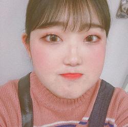 '루푸스병 투병' 최준희, 최근 모습