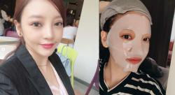 구하라, 안검하수 수술 후 '또렷한 눈매+관리'