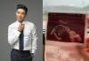 """임창정, """"아내 다섯째 임신""""…아기 초음파 사진공개"""