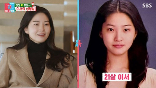 Soo surgery plastic ryu young Love in